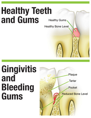 image shows the difference between healthy gums and bleeding gums with gingivitis