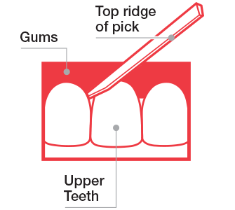 picture shows how to use Stim-u-dent plaque removers to help improve swollen and bleeding gums.
